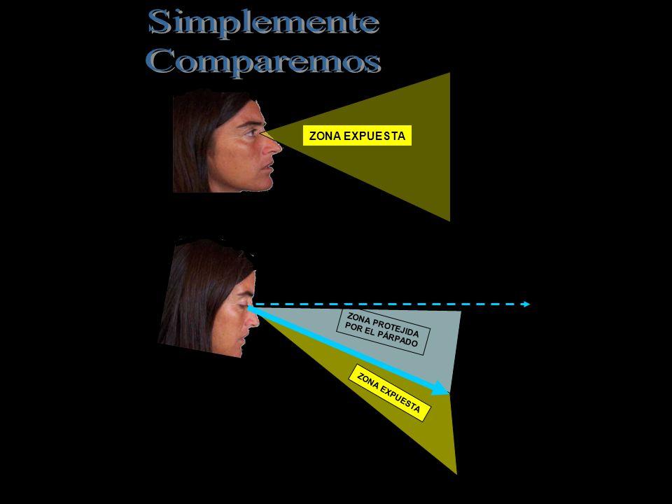 La cabeza está levemente inclinada hacia el monitor. Desde esa posición el párpado cubre casi todo el globo ocular, lo protege del brillo de la pantal