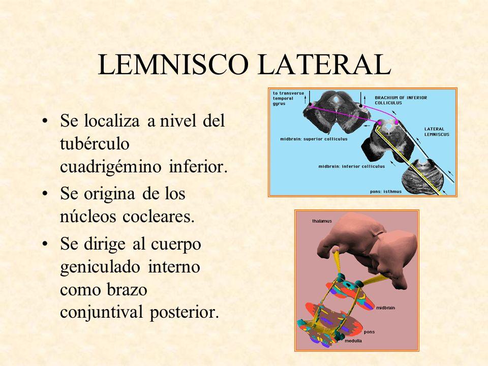 LEMNISCO LATERAL Se localiza a nivel del tubérculo cuadrigémino inferior. Se origina de los núcleos cocleares. Se dirige al cuerpo geniculado interno