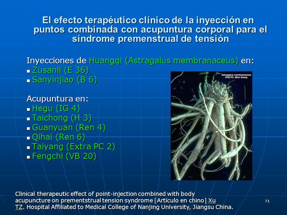 71 El efecto terapéutico clínico de la inyección en puntos combinada con acupuntura corporal para el síndrome premenstrual de tensión Inyecciones de H