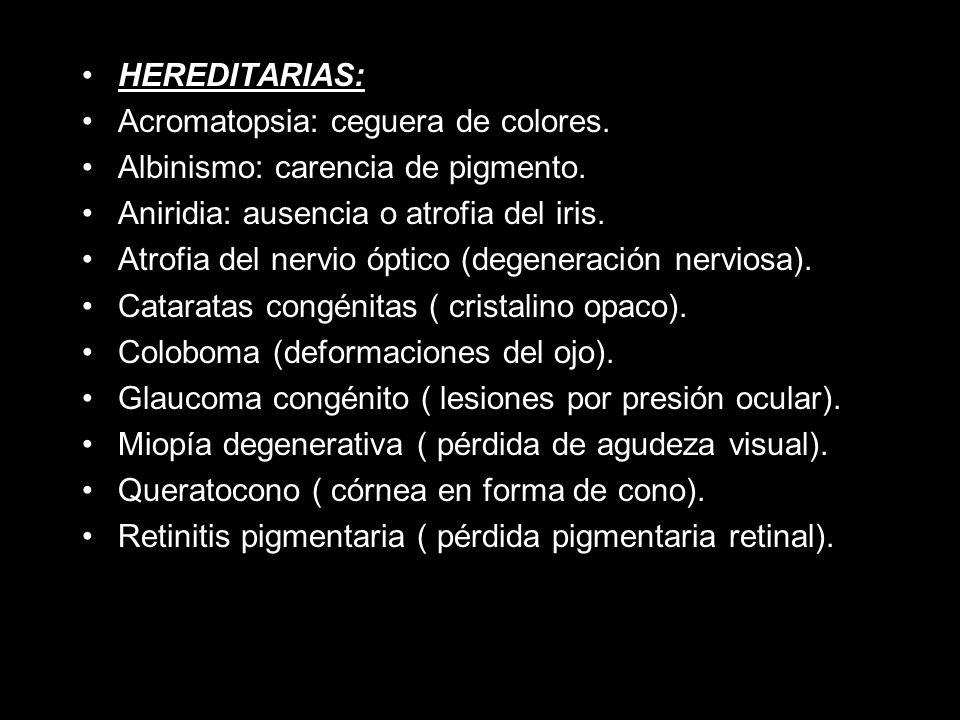 HEREDITARIAS: Acromatopsia: ceguera de colores.Albinismo: carencia de pigmento.