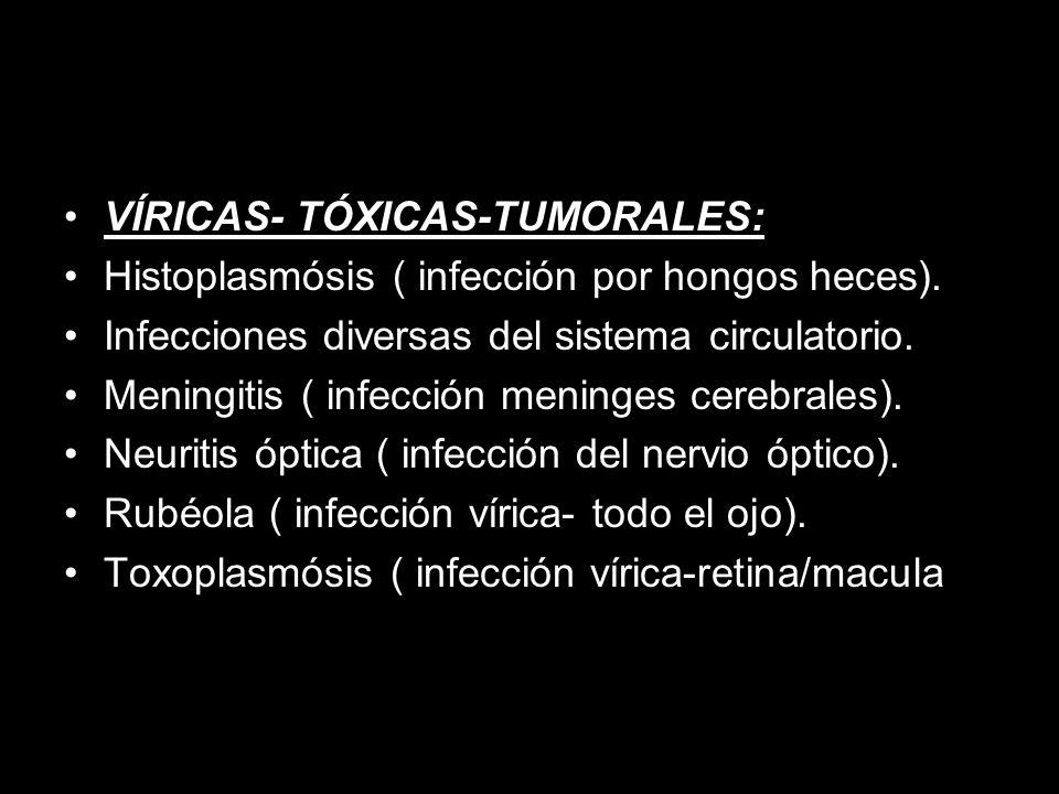 VÍRICAS- TÓXICAS-TUMORALES: Histoplasmósis ( infección por hongos heces).
