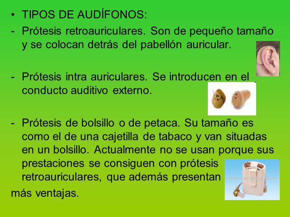 TIPOS DE AUDÍFONOS: -Prótesis retroauriculares.