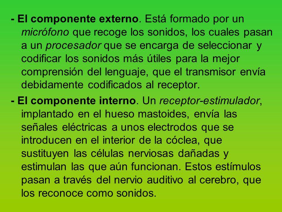 - El componente externo.
