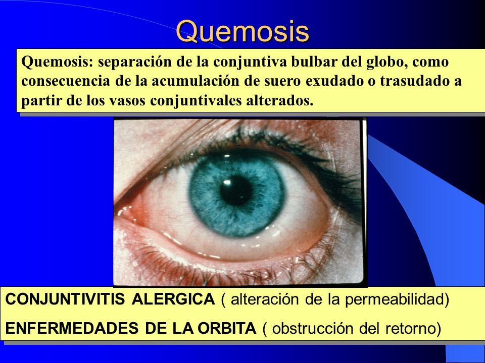 Quemosis Quemosis: separación de la conjuntiva bulbar del globo, como consecuencia de la acumulación de suero exudado o trasudado a partir de los vaso