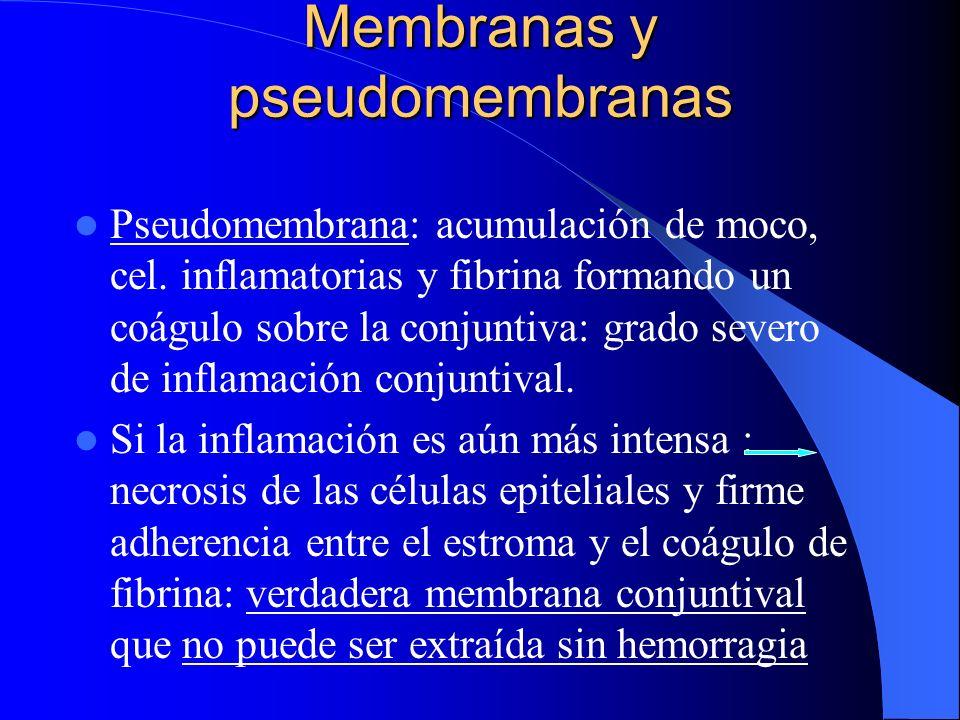 Membranas y pseudomembranas Pseudomembrana: acumulación de moco, cel. inflamatorias y fibrina formando un coágulo sobre la conjuntiva: grado severo de