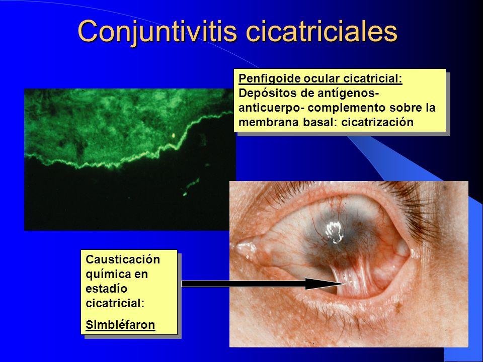 Conjuntivitis cicatriciales Penfigoide ocular cicatricial: Depósitos de antígenos- anticuerpo- complemento sobre la membrana basal: cicatrización Caus