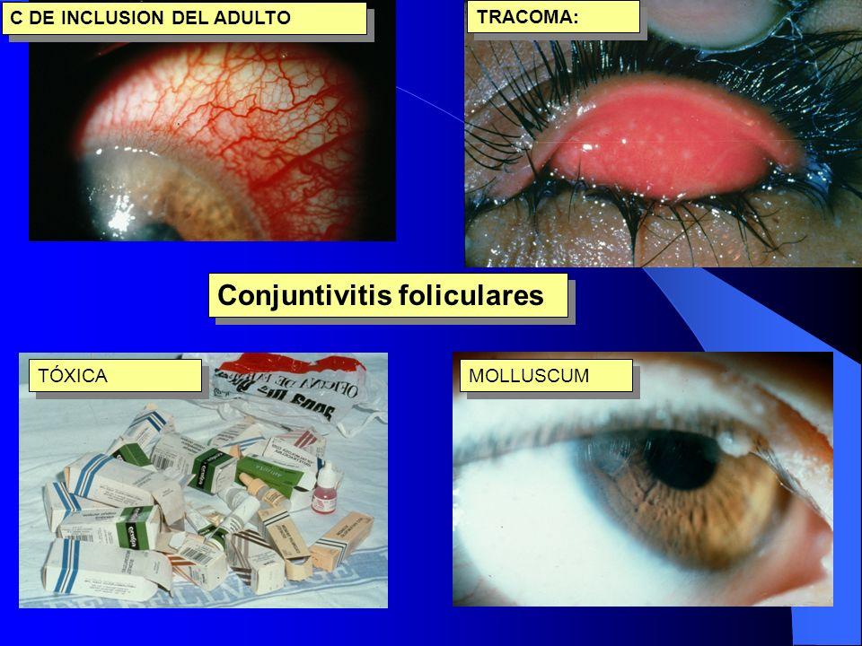 Conjuntivitis foliculares C DE INCLUSION DEL ADULTO TRACOMA: TÓXICA MOLLUSCUM