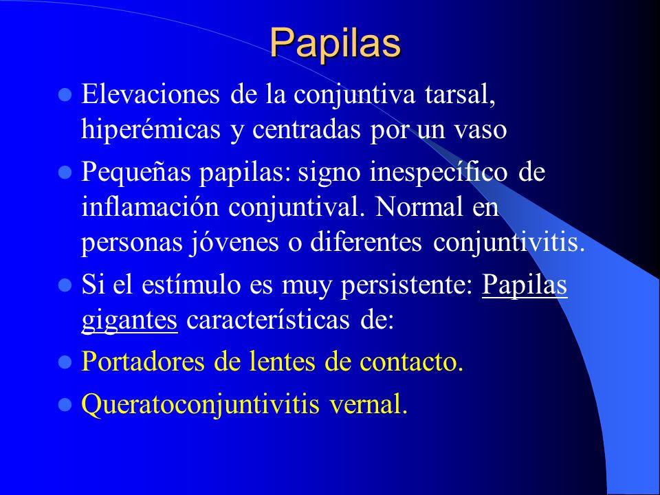 Papilas Elevaciones de la conjuntiva tarsal, hiperémicas y centradas por un vaso Pequeñas papilas: signo inespecífico de inflamación conjuntival. Norm