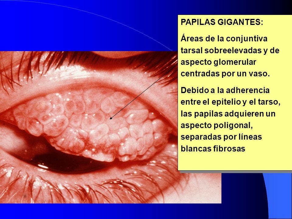 PAPILAS GIGANTES: Áreas de la conjuntiva tarsal sobreelevadas y de aspecto glomerular centradas por un vaso. Debido a la adherencia entre el epitelio