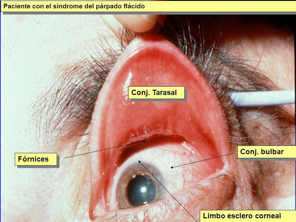 Conjuntivitis cicatriciales Penfigoide ocular cicatricial: Depósitos de antígenos- anticuerpo- complemento sobre la membrana basal: cicatrización Causticación química en estadío cicatricial: Simbléfaron Causticación química en estadío cicatricial: Simbléfaron