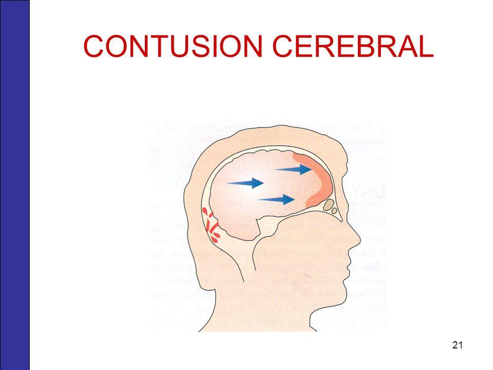 CONTUSION CEREBRAL 21