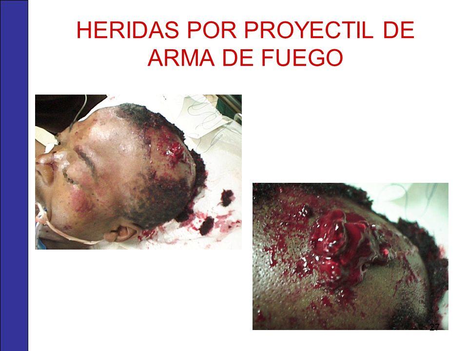 HERIDAS POR PROYECTIL DE ARMA DE FUEGO 27