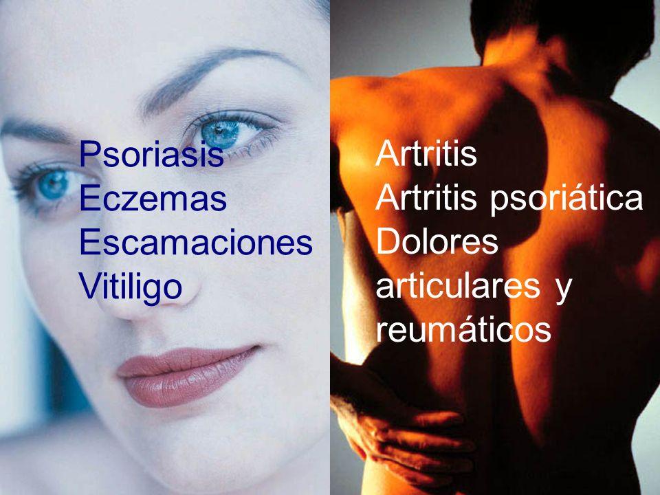 Psoriasis Eczemas Escamaciones Vitiligo Artritis Artritis psoriática Dolores articulares y reumáticos