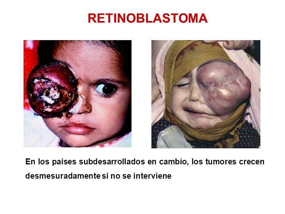 RETINOBLASTOMA En los países subdesarrollados en cambio, los tumores crecen desmesuradamente si no se interviene
