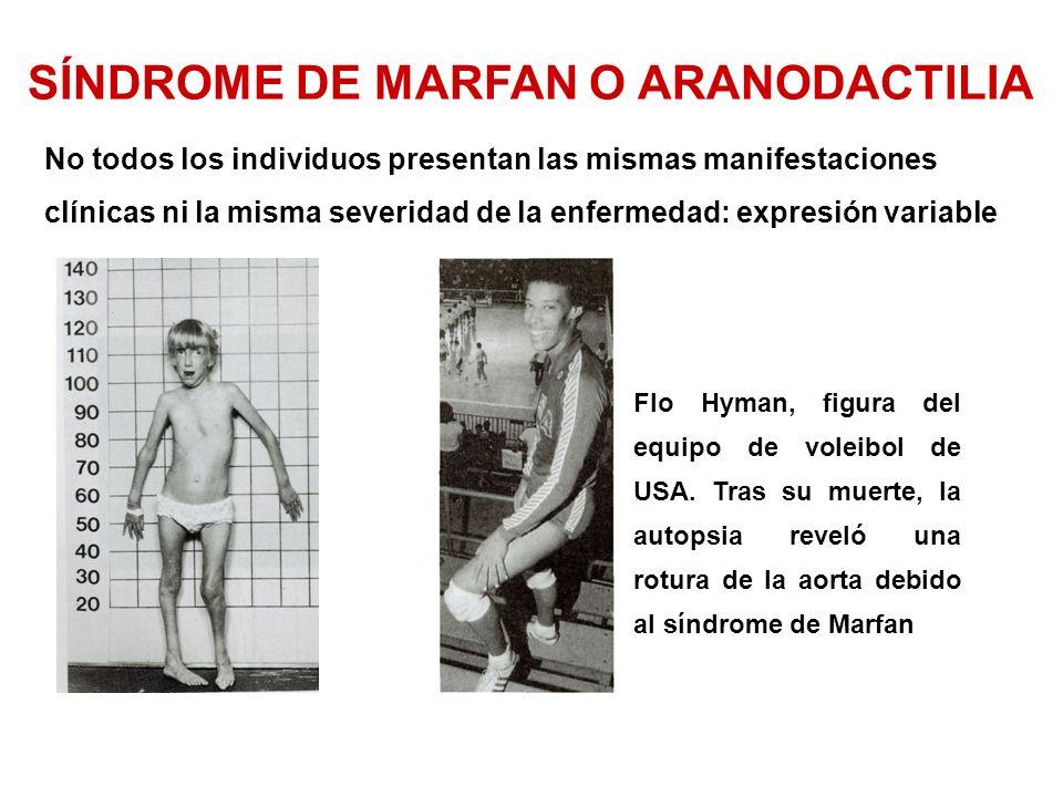 Flo Hyman, figura del equipo de voleibol de USA.