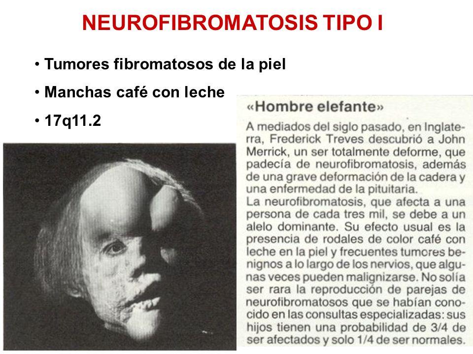 NEUROFIBROMATOSIS TIPO I Tumores fibromatosos de la piel Manchas café con leche 17q11.2