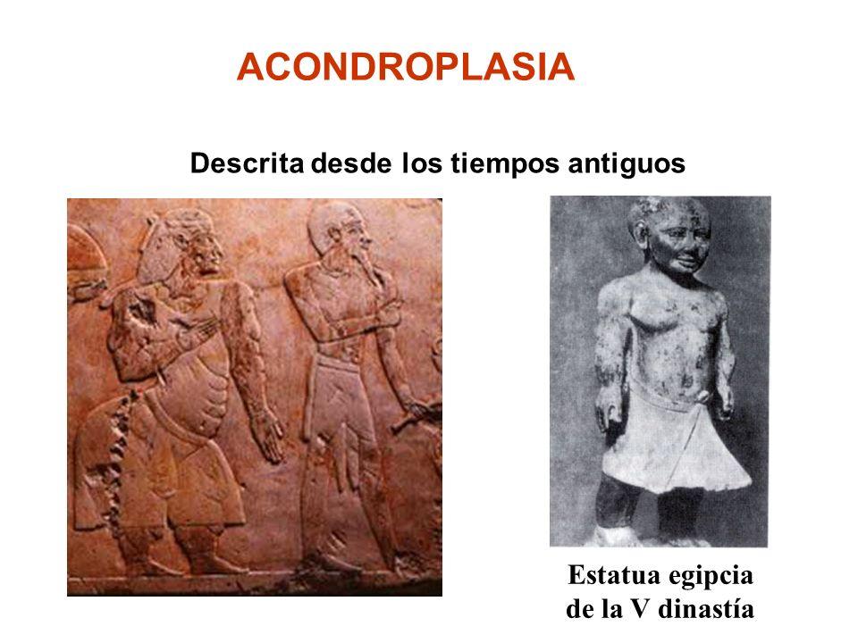 Estatua egipcia de la V dinastía ACONDROPLASIA Descrita desde los tiempos antiguos