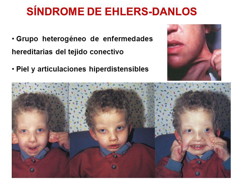 Grupo heterogéneo de enfermedades hereditarias del tejido conectivo Piel y articulaciones hiperdistensibles SÍNDROME DE EHLERS-DANLOS