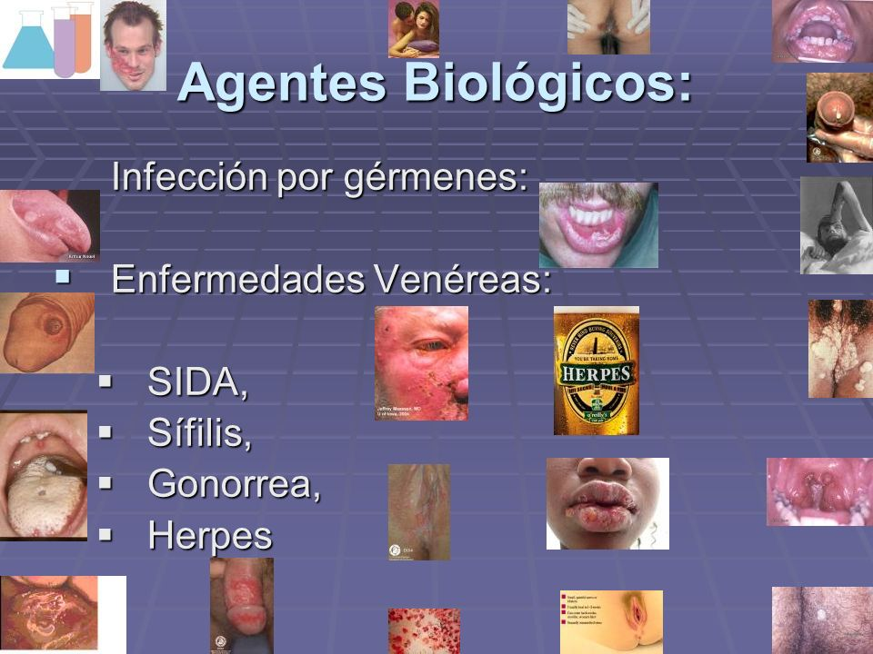 Agentes Biológicos: Infección por gérmenes: Enfermedades Venéreas: Enfermedades Venéreas: SIDA, SIDA, Sífilis, Sífilis, Gonorrea, Gonorrea, Herpes Her