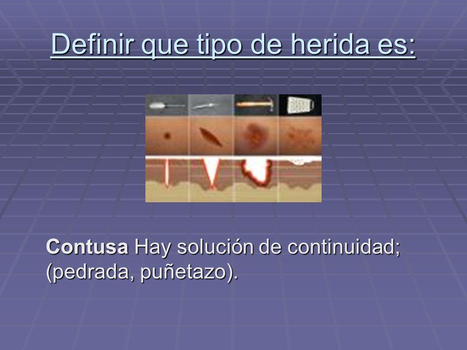 Definir que tipo de herida es: Contusa Hay solución de continuidad; (pedrada, puñetazo).