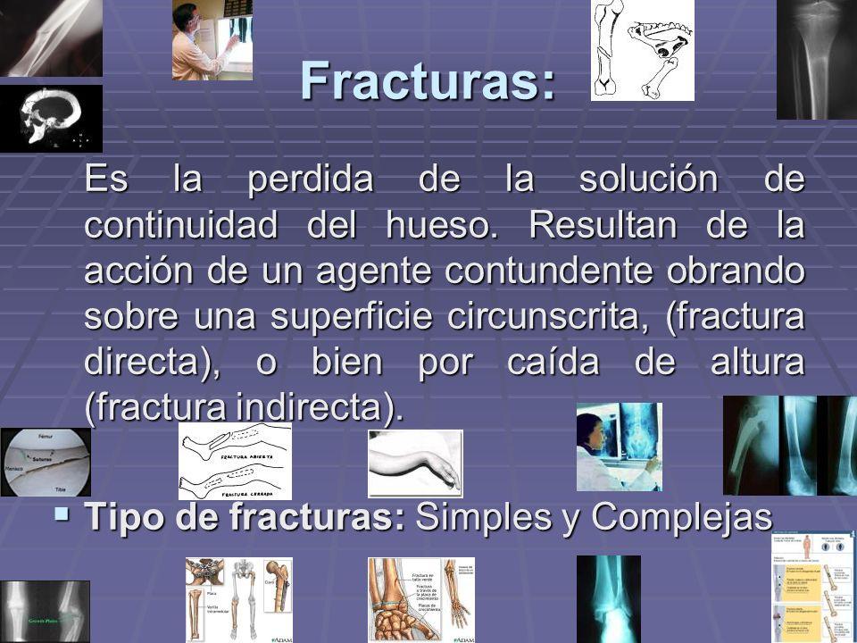 Fracturas: Es la perdida de la solución de continuidad del hueso. Resultan de la acción de un agente contundente obrando sobre una superficie circunsc