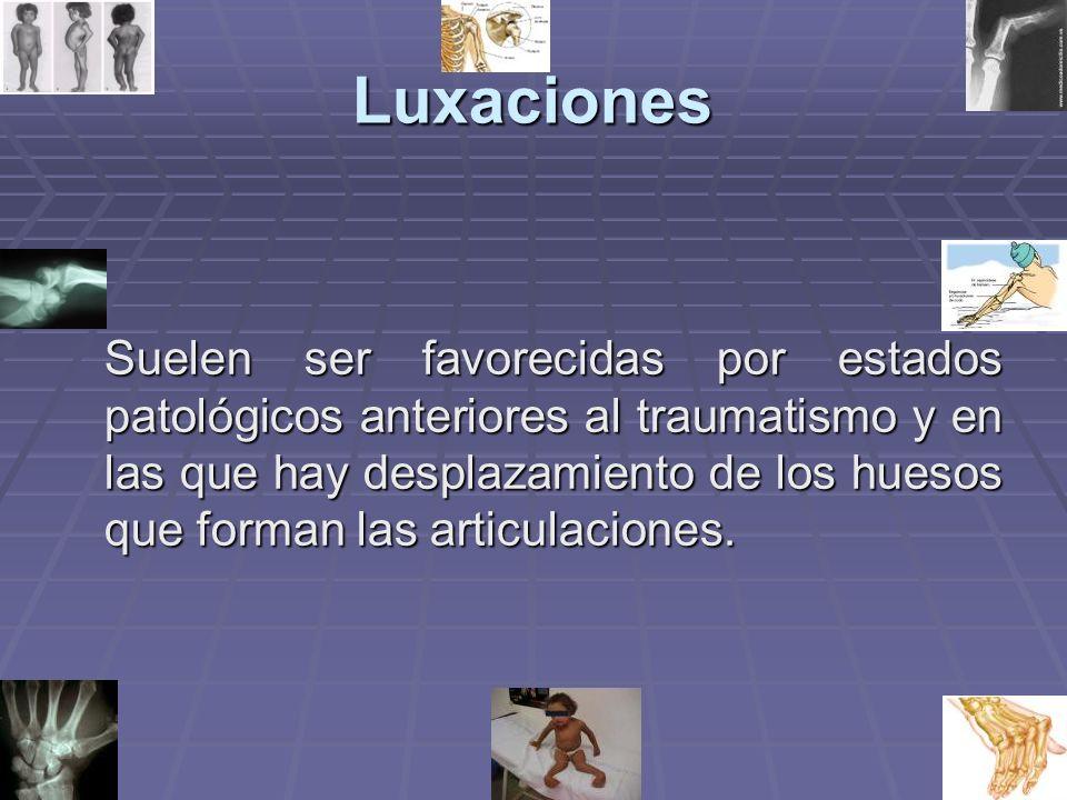 Luxaciones Suelen ser favorecidas por estados patológicos anteriores al traumatismo y en las que hay desplazamiento de los huesos que forman las articulaciones.