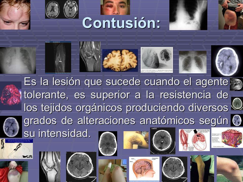Contusión: Es la lesión que sucede cuando el agente tolerante, es superior a la resistencia de los tejidos orgánicos produciendo diversos grados de alteraciones anatómicos según su intensidad.