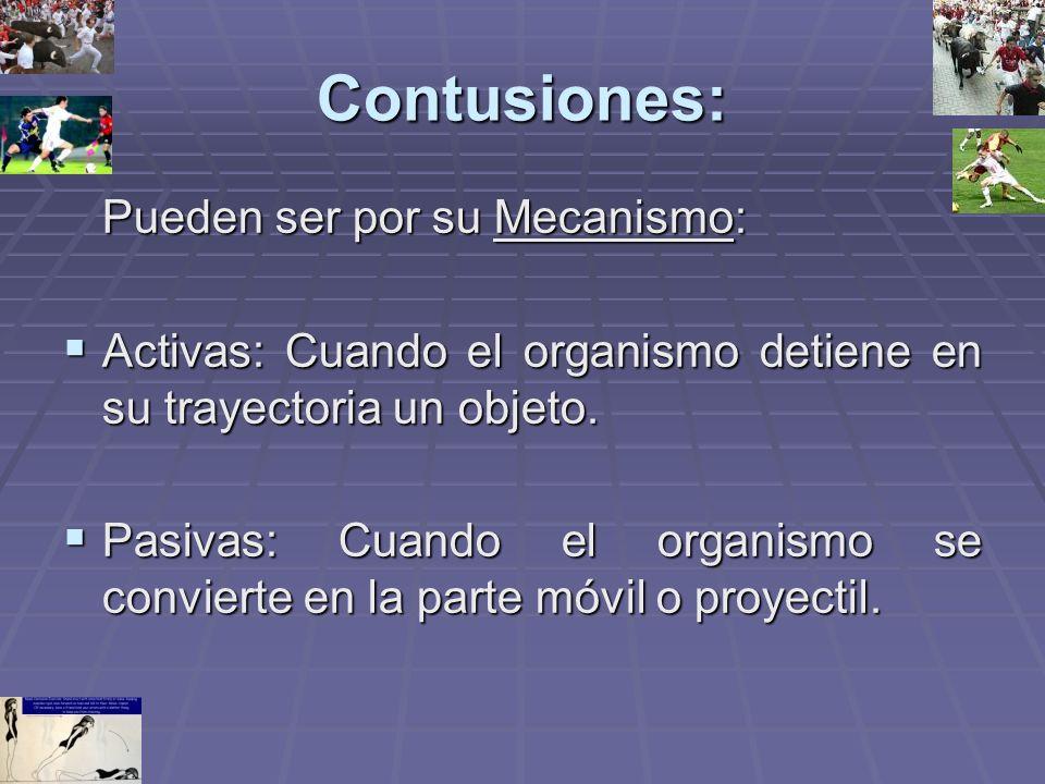 Contusiones: Pueden ser por su Mecanismo: Activas: Cuando el organismo detiene en su trayectoria un objeto. Activas: Cuando el organismo detiene en su