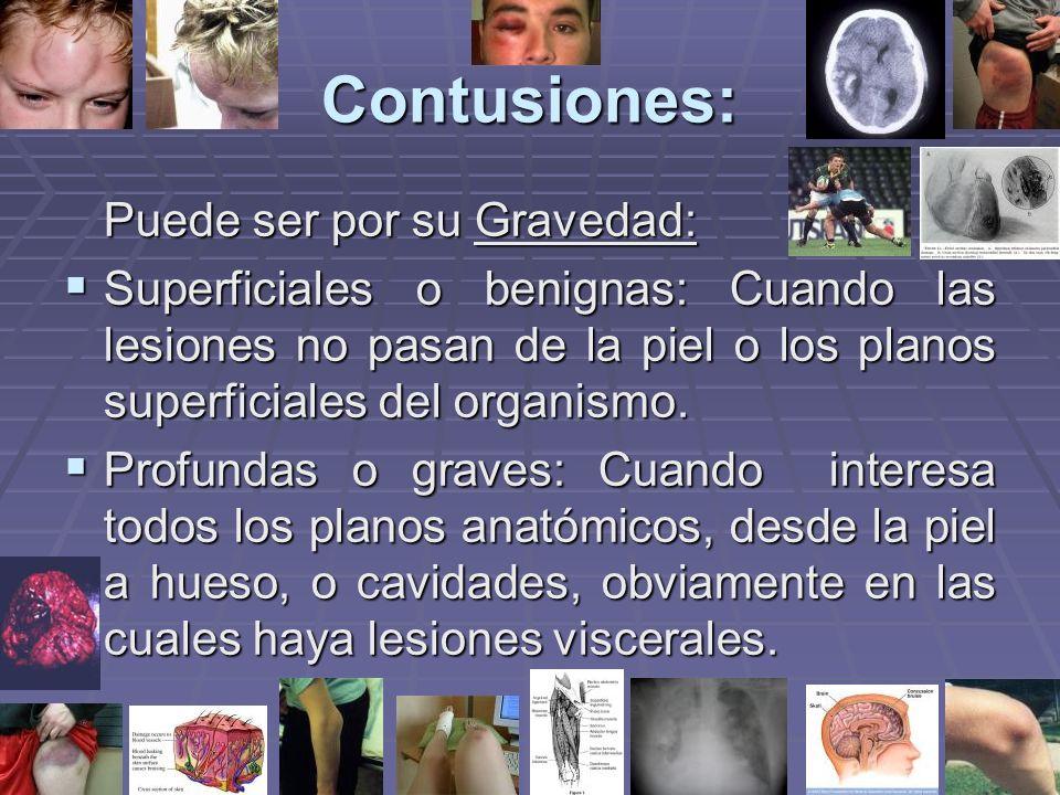 Contusiones: Puede ser por su Gravedad: Superficiales o benignas: Cuando las lesiones no pasan de la piel o los planos superficiales del organismo.
