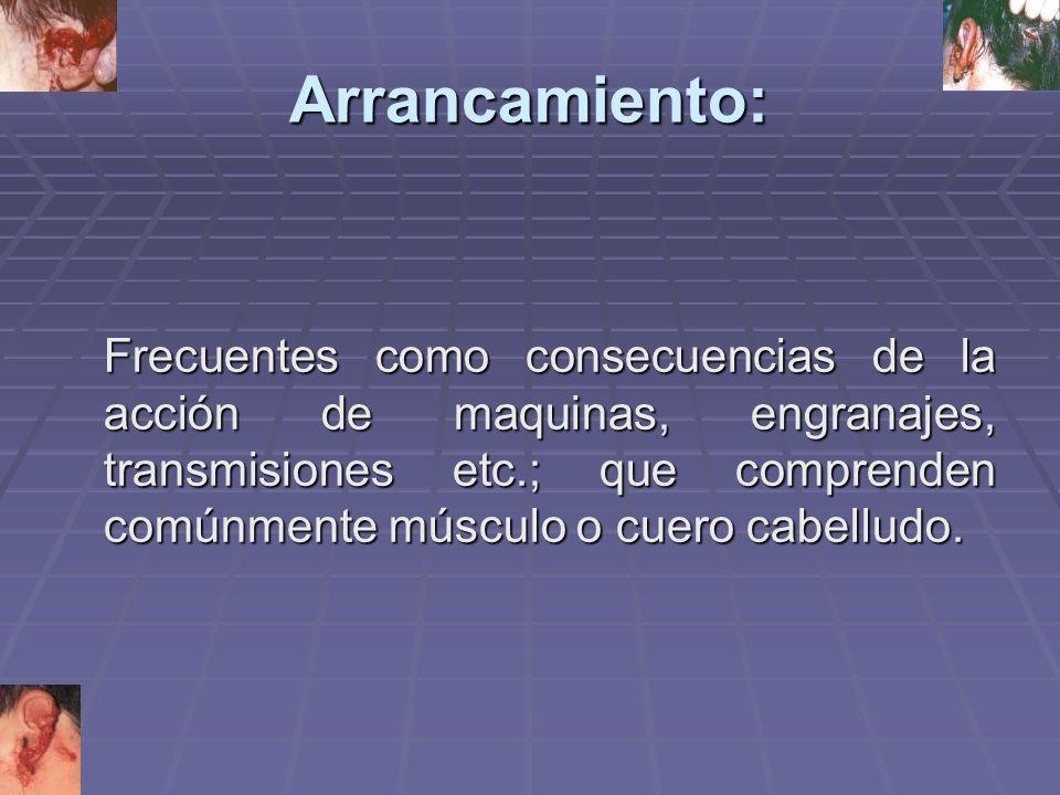 Arrancamiento: Frecuentes como consecuencias de la acción de maquinas, engranajes, transmisiones etc.; que comprenden comúnmente músculo o cuero cabelludo.