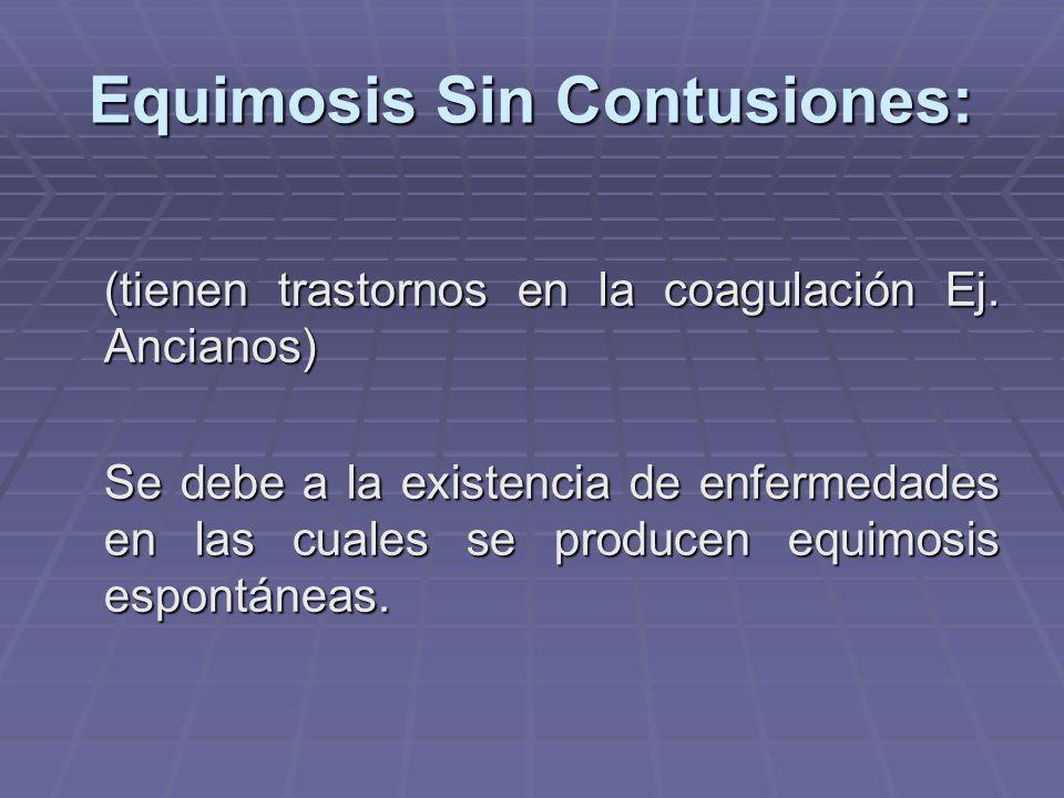 Equimosis Sin Contusiones: (tienen trastornos en la coagulación Ej. Ancianos) Se debe a la existencia de enfermedades en las cuales se producen equimo