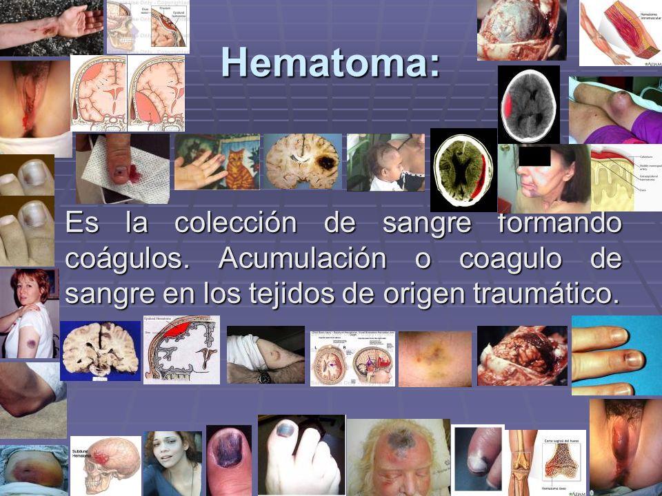 Hematoma: Es la colección de sangre formando coágulos. Acumulación o coagulo de sangre en los tejidos de origen traumático.