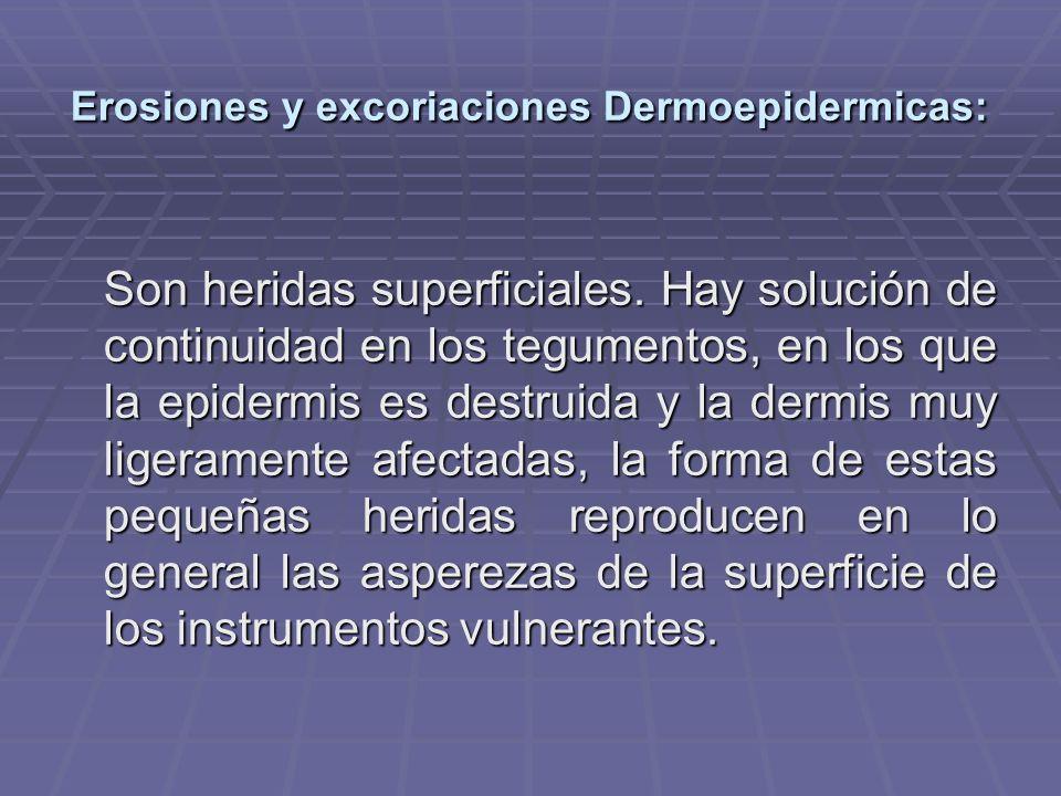 Erosiones y excoriaciones Dermoepidermicas: Son heridas superficiales. Hay solución de continuidad en los tegumentos, en los que la epidermis es destr