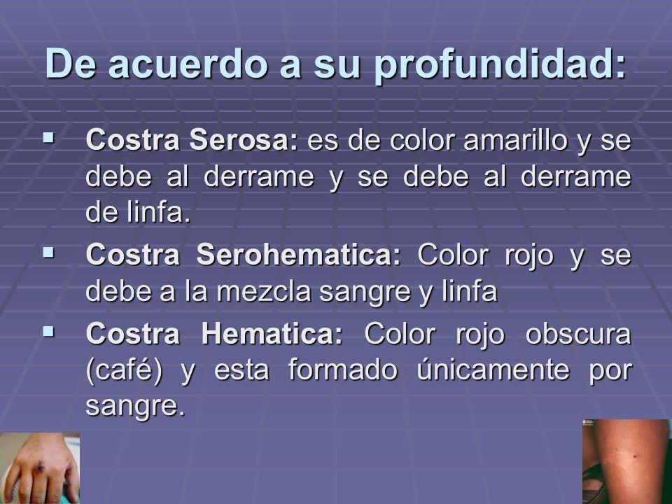 De acuerdo a su profundidad: Costra Serosa: es de color amarillo y se debe al derrame y se debe al derrame de linfa.