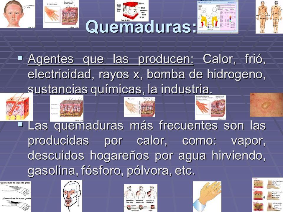 Quemaduras: Agentes que las producen: Calor, frió, electricidad, rayos x, bomba de hidrogeno, sustancias químicas, la industria.