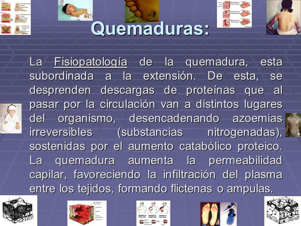 Quemaduras: La Fisiopatología de la quemadura, esta subordinada a la extensión. De esta, se desprenden descargas de proteínas que al pasar por la circ