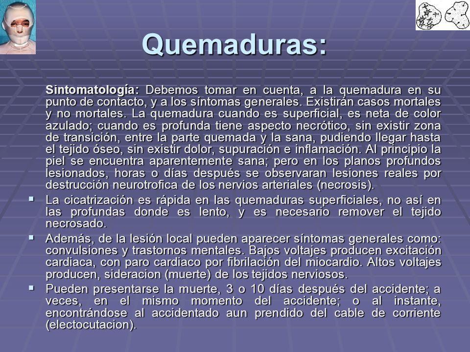 Quemaduras: Sintomatología: Debemos tomar en cuenta, a la quemadura en su punto de contacto, y a los síntomas generales.