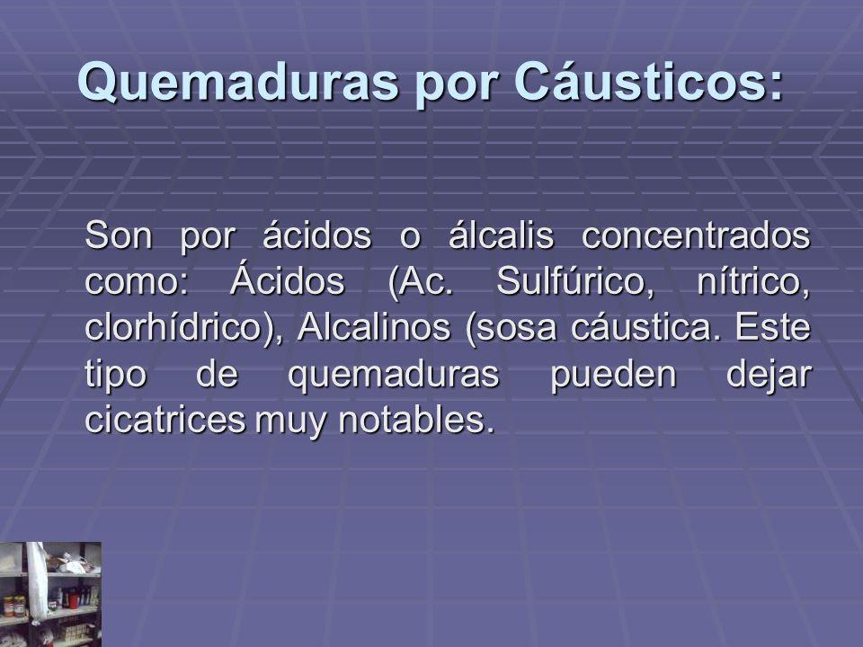 Quemaduras por Cáusticos: Son por ácidos o álcalis concentrados como: Ácidos (Ac. Sulfúrico, nítrico, clorhídrico), Alcalinos (sosa cáustica. Este tip
