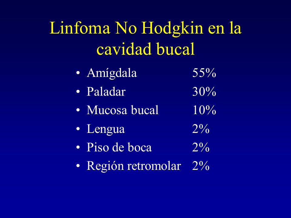 Linfoma No Hodgkin en la cavidad bucal Amígdala55% Paladar30% Mucosa bucal10% Lengua2% Piso de boca2% Región retromolar2%