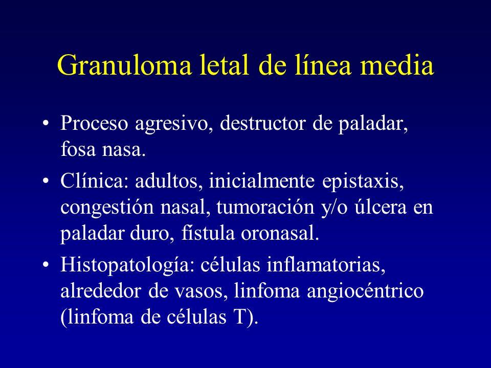 Granuloma letal de línea media Proceso agresivo, destructor de paladar, fosa nasa.