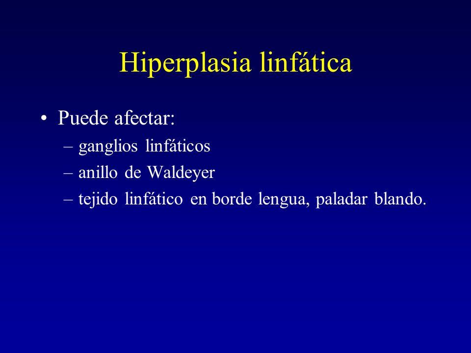Hiperplasia linfática Puede afectar: –ganglios linfáticos –anillo de Waldeyer –tejido linfático en borde lengua, paladar blando.