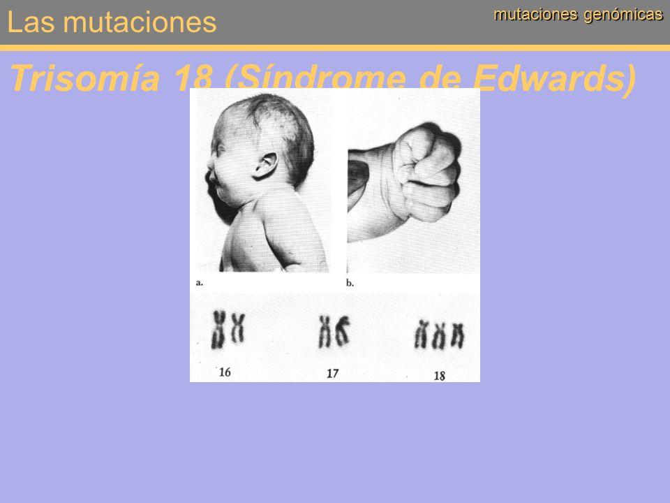 Las mutaciones mutaciones genómicas Trisomía 18 (Síndrome de Edwards)