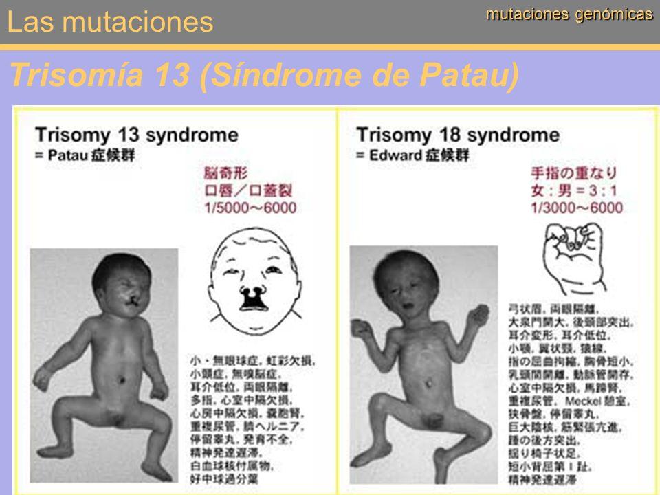 Las mutaciones mutaciones genómicas Trisomía 13 (Síndrome de Patau)