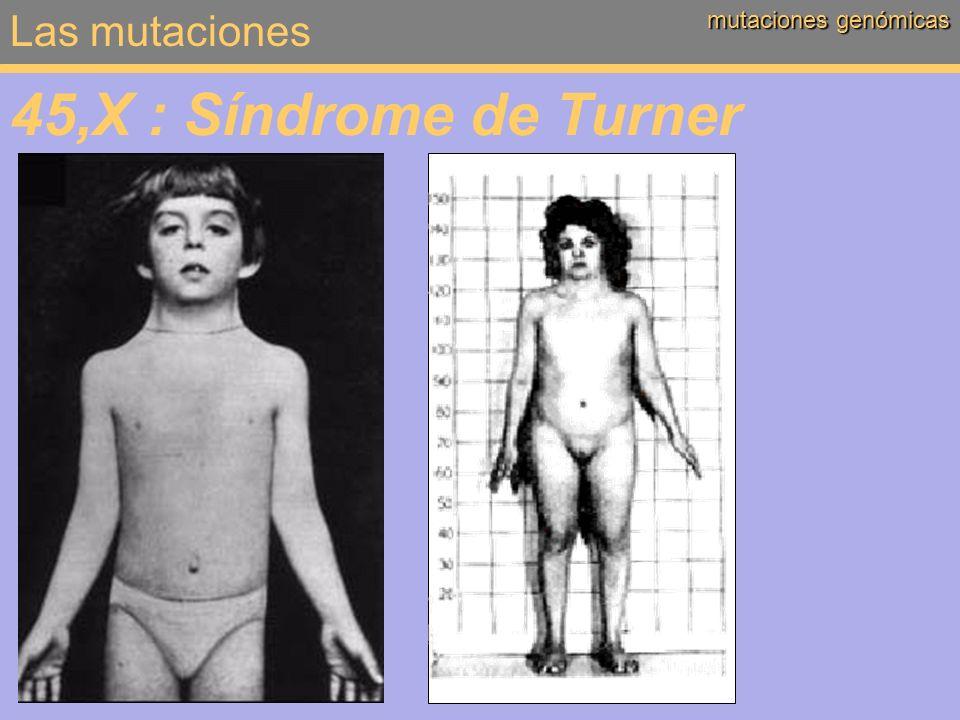 Las mutaciones mutaciones genómicas 45,X : Síndrome de Turner