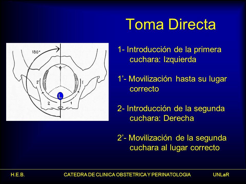 H.E.B. CATEDRA DE CLINICA OBSTETRICA Y PERINATOLOGIA UNLaR Toma Directa 1- Introducción de la primera cuchara: Izquierda 1- Movilización hasta su luga