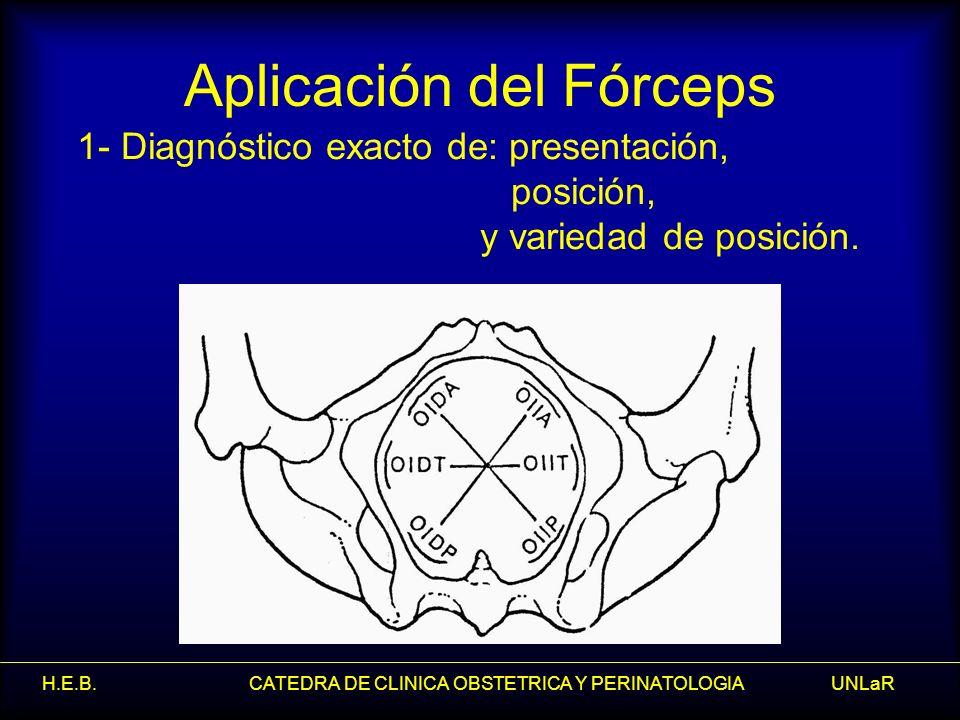 H.E.B. CATEDRA DE CLINICA OBSTETRICA Y PERINATOLOGIA UNLaR Aplicación del Fórceps 1- Diagnóstico exacto de: presentación, posición, y variedad de posi