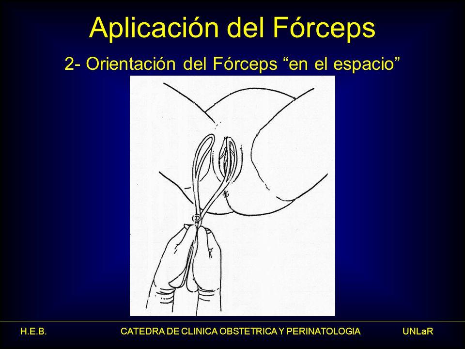 H.E.B. CATEDRA DE CLINICA OBSTETRICA Y PERINATOLOGIA UNLaR Aplicación del Fórceps 2- Orientación del Fórceps en el espacio
