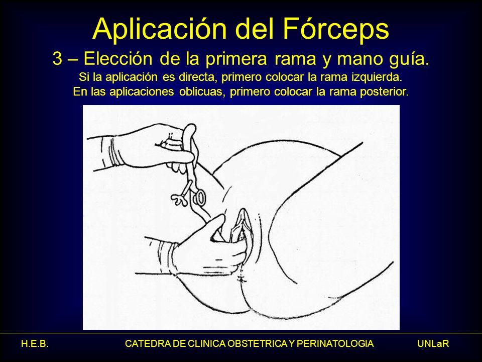 H.E.B. CATEDRA DE CLINICA OBSTETRICA Y PERINATOLOGIA UNLaR Aplicación del Fórceps 3 – Elección de la primera rama y mano guía. Si la aplicación es dir