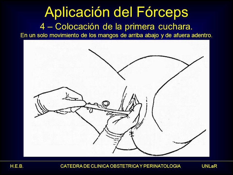 H.E.B. CATEDRA DE CLINICA OBSTETRICA Y PERINATOLOGIA UNLaR Aplicación del Fórceps 4 – Colocación de la primera cuchara. En un solo movimiento de los m