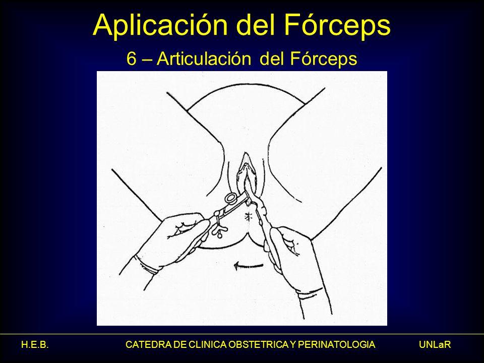 H.E.B. CATEDRA DE CLINICA OBSTETRICA Y PERINATOLOGIA UNLaR Aplicación del Fórceps 6 – Articulación del Fórceps